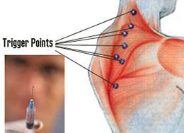 Dry Needling - Trigger Poitns